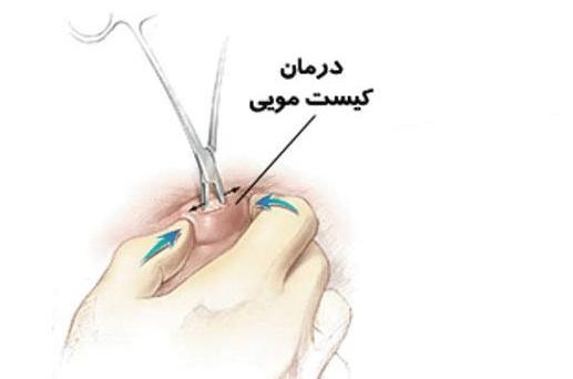 درمان کیست مویی یا پیلونیدال