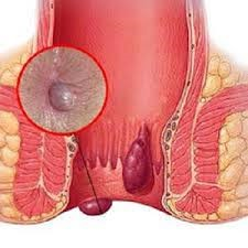 علایم بیماری بواسیر یا هموروئید
