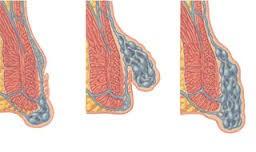 آیا بعد از جراحی احتمال بازگشت بیماری بواسیر یا هموروئید وجود دارد؟