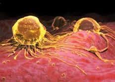 رابطه بواسیر,هموروئید با سرطان روده