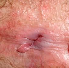 ایجاد زائده پوستی براثر زخم ناشی از شقاق یا فیشر