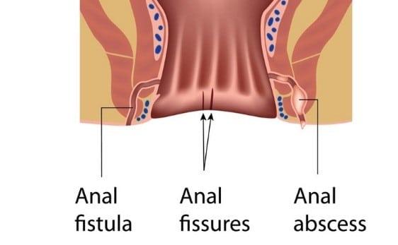 ابتلا به فیستول بعد از جراحی شقاق
