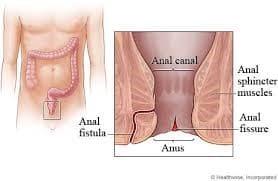 عواقب عدم درمان فیستول