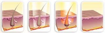 استفاده از لیزر موهای زائد بعد از جراحی کیست مویی یا پیلونیدال