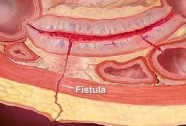 فیستولوگرافی در تشخیص فیستول