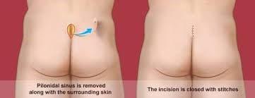 روش درمانی کیست مویی یا پیلونیدال چیست؟