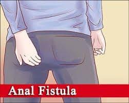 درمان قطعی مناسب آبسه وفیستول مقعدی