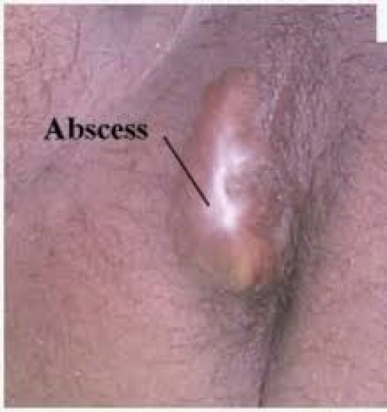 pictures-of-anal-abscess-masturbation-good-or-bad
