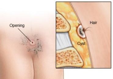 کیست مویی یا پیلونیدال و احساس درد در پائین کمر