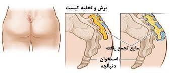 مراقبت های بعد از عمل کیست مویی یا سینوس پیلونیدال