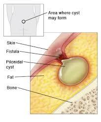 عفونت ناشی از کیست مویی یا پیلونیدال