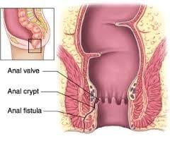 علائم و درمان فیستول
