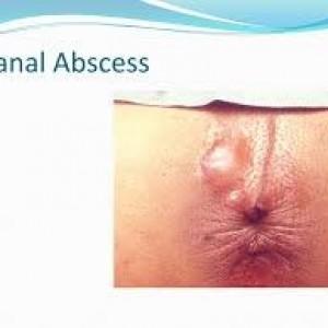 آبسه مقعدی یا فیستول بیماری نشیمن گاهی ناشی از تجمع عفونت در اطراف مقعد