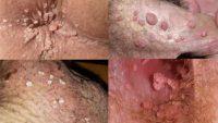 علائم زگیل تناسلی و روشهای درمان این عارضه