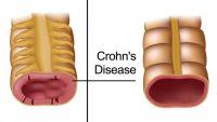 آنچه که باید درباره بیماری کرون بدانیم!