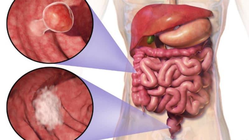 هر آنچه که باید در مورد سرطان کولون (روده بزرگ) بدانید!