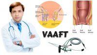 استفاده از روش vaaft برای درمان فیستول