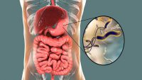 راههای تشخیص و درمان میکروب معده چیست؟