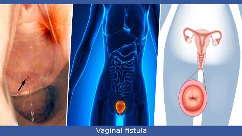 تشخیص بیماری فیستول در زنان یا فیستول واژن و راههای درمان