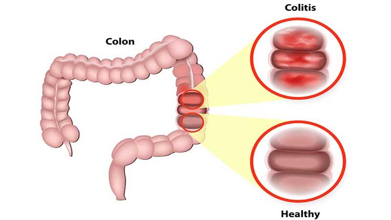 بیماری کولیت و کولون