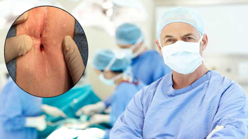 دکتر خوب برای درمان کیست مویی در تهران